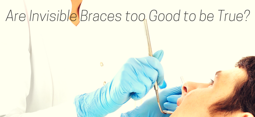 Are Invisible Braces too Good to be True